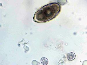 Oben ein Ei eines Luftröhrenwurms, unten zwei Kokzidien Oozysten im Kot einer Amsel, © Anke Dornbach